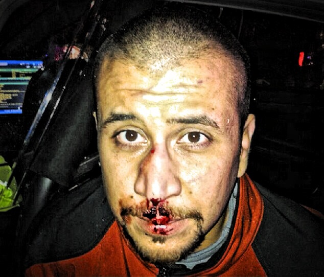 George Zimmerman agrees to celebrity boxing match ...